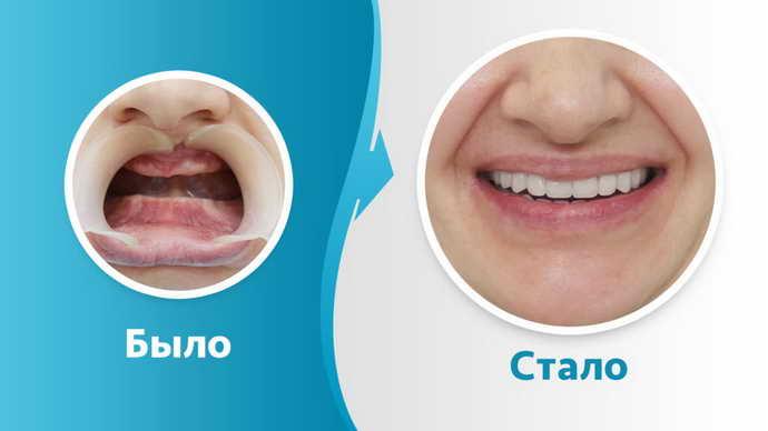 Восстановить полностью зубной ряд