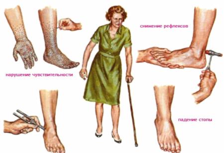 Почему немеют ноги при диагнозе сахарный диабет, симптоматика, методы диагностики, лечения, потенциальные осложнения и профилактика
