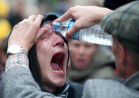 Лучше промывать обожженные глаза и кожу водой, чем не промывать совсем
