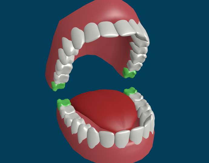 Причины неправильного положения зуба