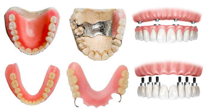 Комбинированные варианты зубных протезов