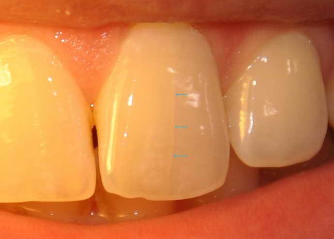 Разновидности трещин на зубах