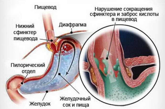 Халазия кардии как причина кислого запаха изо рта