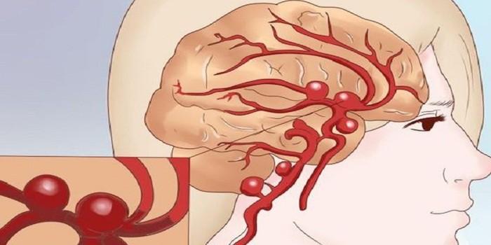 Причины арахноидальной кисты головного мозга