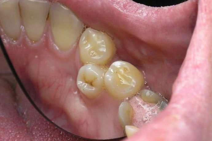 Виды аномалии когда зуб мудрости растет в зуб