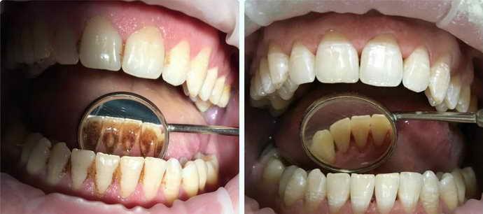 Что такое зубной камень, почему он образуется и чем опасен