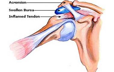 Рисунок плечевого сустава
