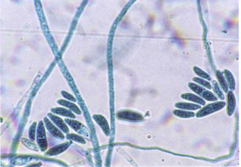 Фузариум – плесень, продуцирующая трихотецены