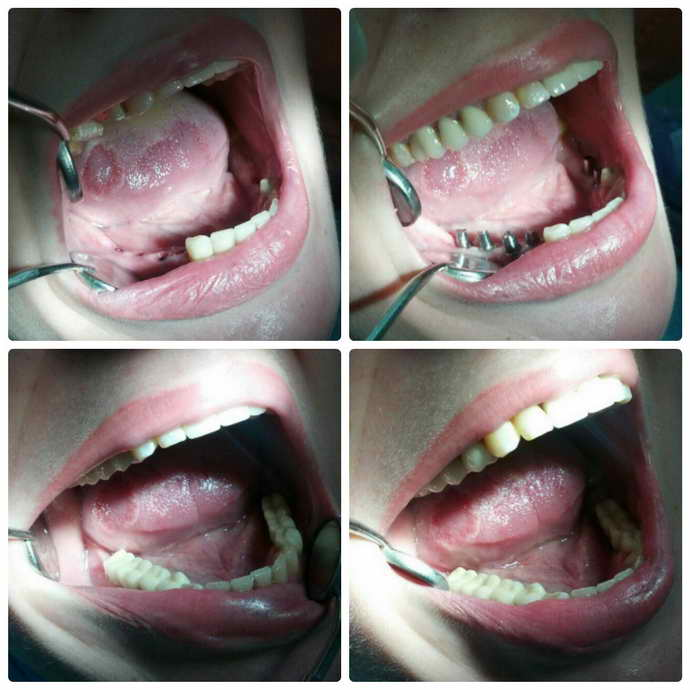 Лечение зубочелюстных патологий