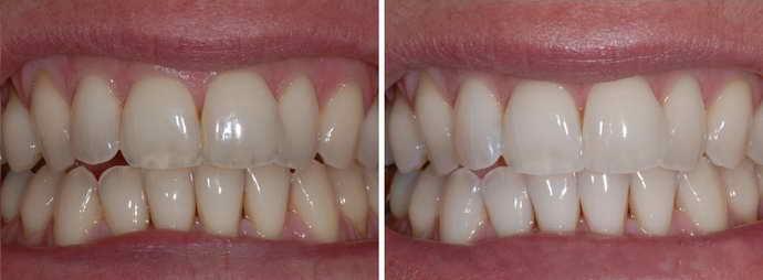 Методы регенерации зубной эмали при значительных повреждениях