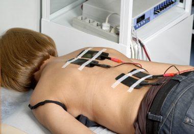 Электронейростимуляция спины