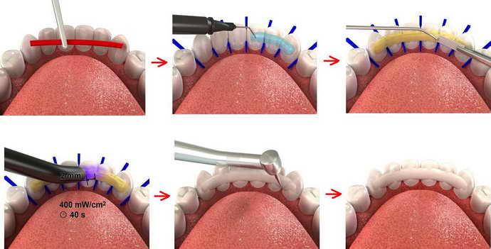 Шинирование против расшатанных зубов