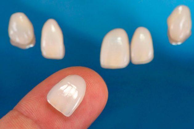 Фарфоровые виниры на передние зубы