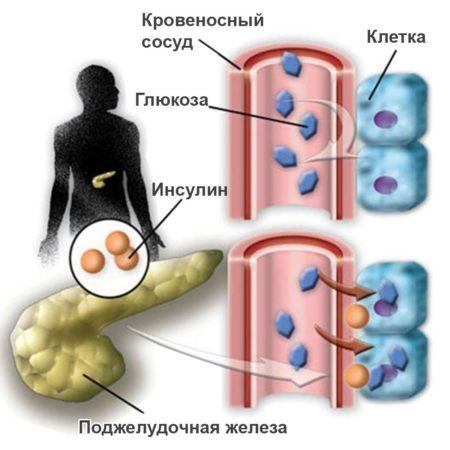 Разница между сахарным диабетом 1 и 2 типа, причины возникновения, диагностика, методы лечения, профилактики и потенциальные осложнения