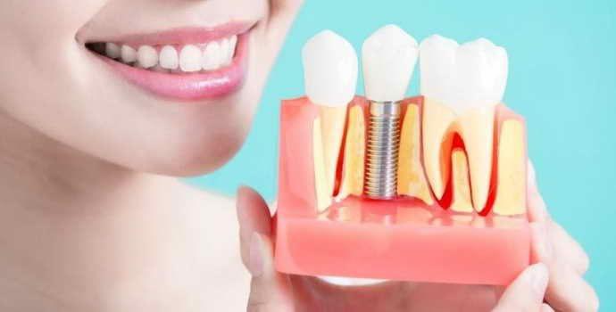 Не подходит имплантация зубов – альтернатива есть, это – протезирование