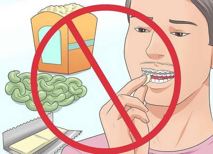 Отказ от твердой и липкой пищи чтобы избежать боли от брекетов