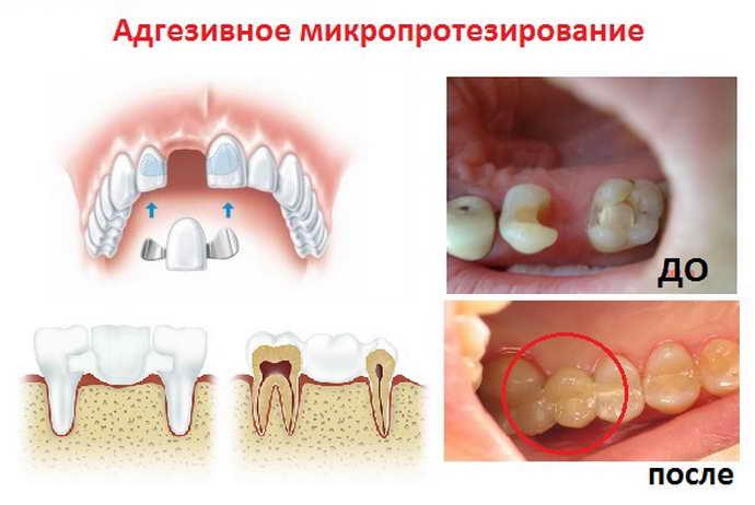 Адгезивный способ микропротезирование зубов
