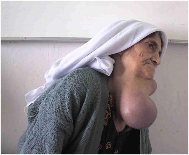 Гиперплазия щитовидки V степени тяжести