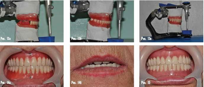 третий этап изготовления зубных протезов