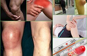 симптомы бурсита колена