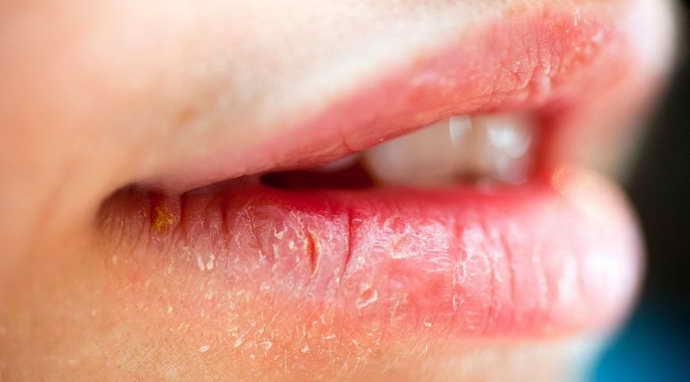 Хроническийхейлит на губах