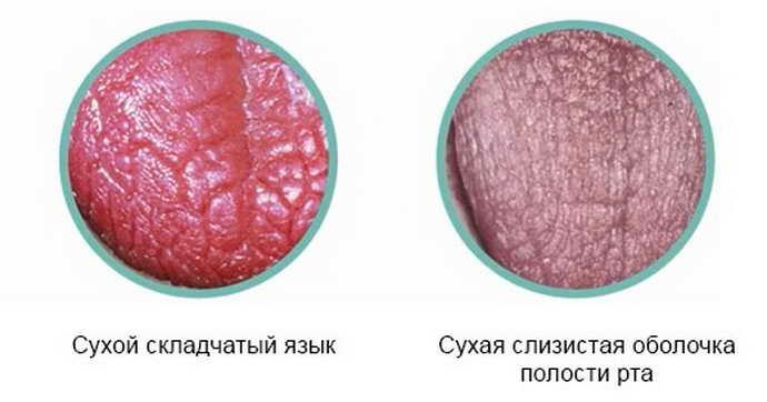 Нарушение процессов слюноотделения в полости рта – ксеростомия