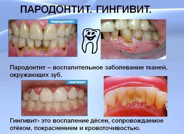 гингивит и пародонтит - противопоказания к crest отбеливанию зубов