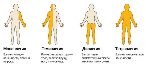 Гемиплегия виды