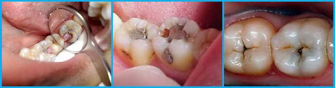 Что нужно делать перед процедурой пломбирования зуба