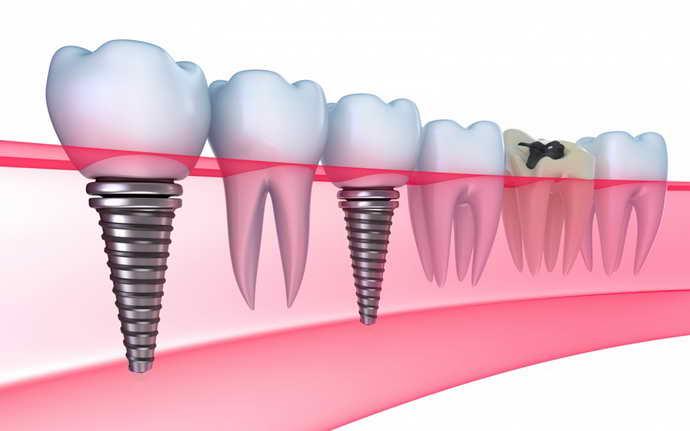 Опора для протеза зуб мудрости