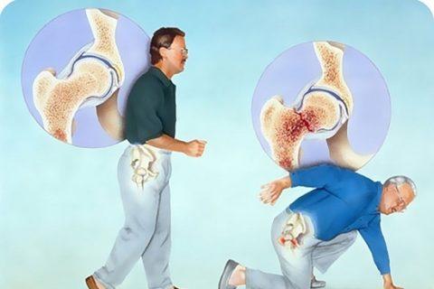 У больных с остеопорозом чаще возникают патологические переломы