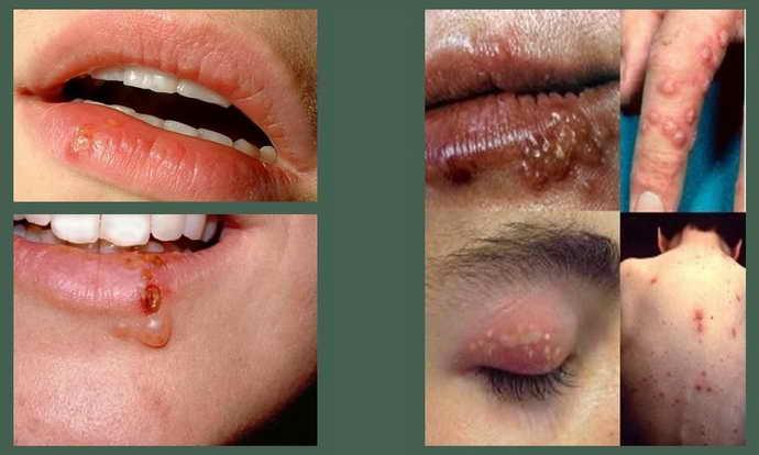 Вирус простого герпеса и опух язык