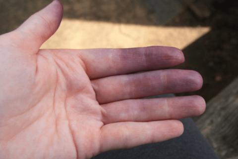 Синюшность кожных покровов – это один из признаков наличия раковой опухоли.