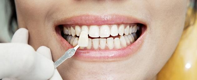 виниры - противопоказание к отбеливанию зубов Pearlsmile