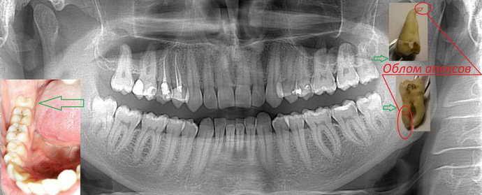 Сложное (атипичное) удаление зуба мудрости
