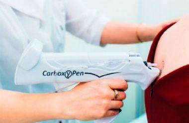 Карбокситерапия при остеохондрозе
