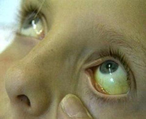 Пожелтели глаза – бегом проверять печень