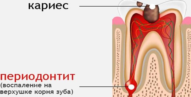 хронический периодонтит