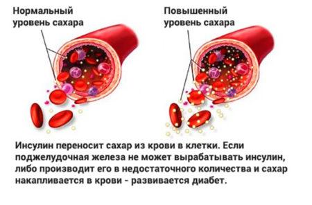 Какие нормы холестерина и сахара в крови, влияние возраста и пола, сдача анализов