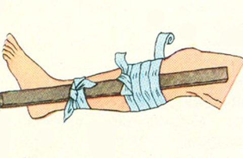 Постарайтесь минимизировать движения в укушенной конечности