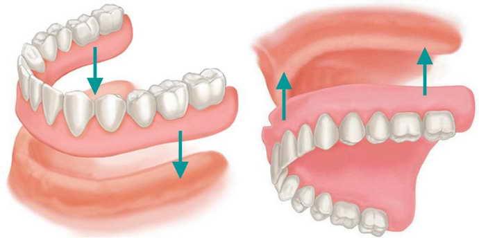 Показания к протезированию зубов нижней челюсти