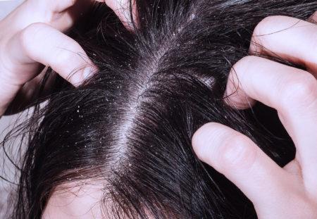 Симптомы вшей на голове: как выглядят, как избавиться от паразитов