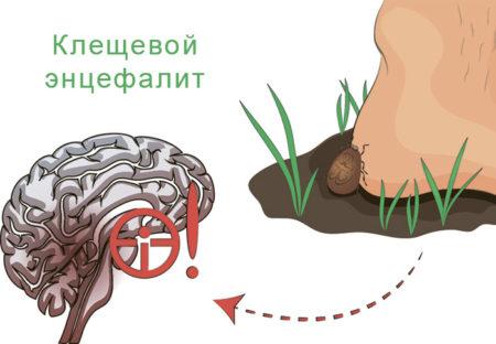 Какие симптомы энцефалита возникают у человека после укусов энцефалитного клеща