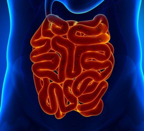 На фото рак кишечника – причина аутоинтоксикации организма.
