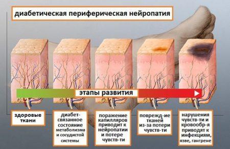 Использование препаратов для лечения диабетической нейропатии нижних конечностей