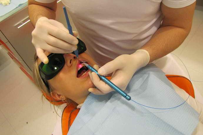 Лазерное лечение пришеечного кариеса