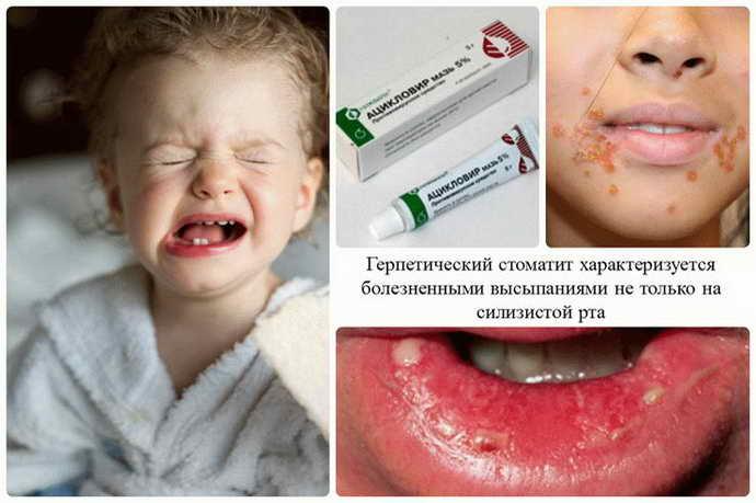 Герпетический стоматит у детей