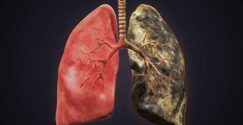 Рак легких — одно из страшных последствий курения