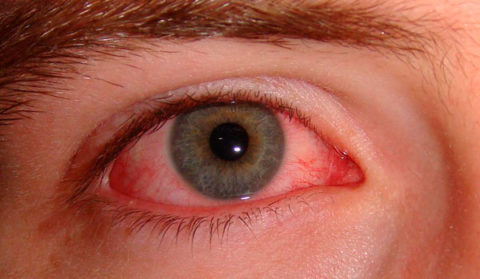 На фото основной признак отравления парами доместоса – покраснение слизистой оболочки глаз.