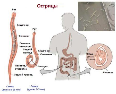 Какие виды паразитов вызывает зуд в заднем проходе: методы лечения гельминтозов и протозойных инфекций